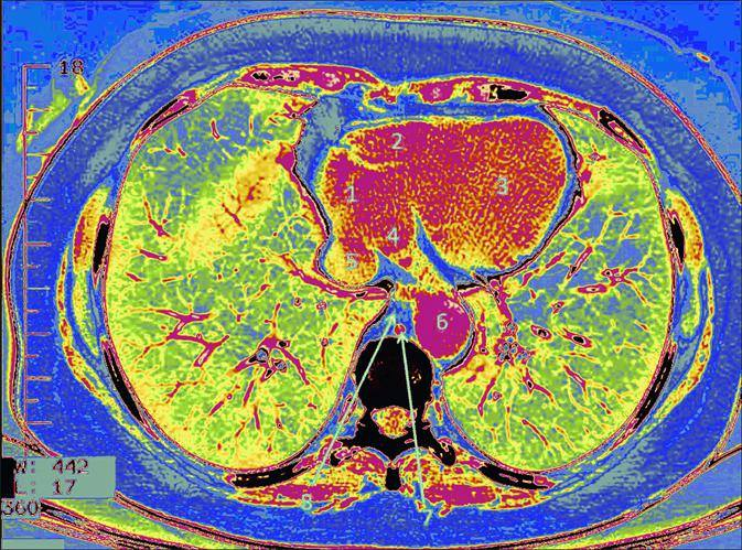 LUNGS AND HEART TOMOGRAPHY